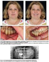 Особенности коррекции мягких тканей у больных с реконструированными челюстями трансплантатами на сосудистой ножке