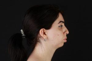 Западение нижней челюсти назад, нарушение прикуса