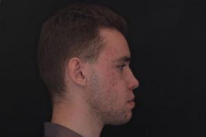 Фотография лица в профиль. Отмечается выраженная средняя зона лица