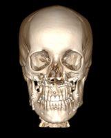 3D реконструкция черепа в фас после остеотомии челюстей и остеосинтеза титановыми пластинками