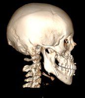 3D реконструкция черепа в профиль после остеотомии челюстей и остеосинтеза титановыми пластинками