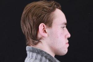 Фотография лица