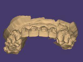 3D планирование ортогнатической операции
