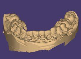 Выполнение оптического сканирования зубных рядов. Оптическая модель зубных рядов