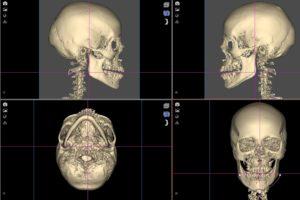 Ориентация черепа в пространстве