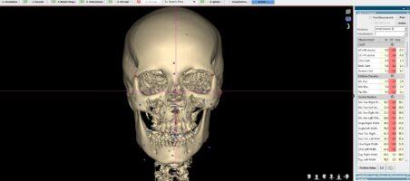 3D цефалометрический анализ