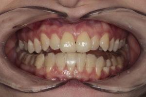 Фронтальная фотография прикуса. Пациент с каппой (Splint) в постоперационном периоде