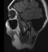 Срез МРТ левого ВНЧС в положении открытого рта 34мм