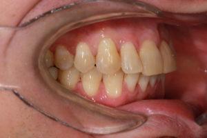 Фронтальная фотография прикуса. Отмечается отсутствие наклонов окклюзионных плоскостей верхней и нижней челюсти
