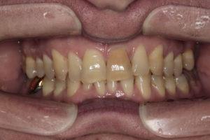 Фронтальная фотография прикуса. Отмечается наклон окклюзионной плоскости верхней челюсти в правую стороны
