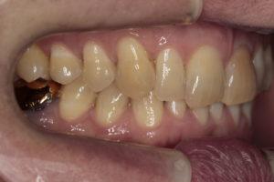 Боковая фотография прикуса (справа). Отмечается некорректная инклинация резцов верхней челюсти. (Блокировка нижней челюсти). Штампованная коронка на зубе 4.6