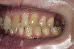 Боковая фотография прикуса (слева). Отсутствие зуба 2.6