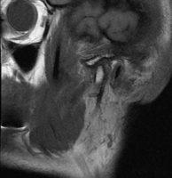 Срез МРТ правого ВНЧС в положении закрытого рта. Отмечается нормальное положение суставного диска