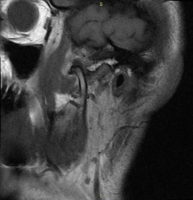 Срез МРТ правого ВНЧС в положении открытого рта 54 мм. Отмечается выход головки сустава за суставной бугор (гипермобильность сустава)