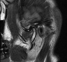 Срез МРТ Левого ВНЧС в положении закрытого рта. Отмечается переднее смещение суставного диска
