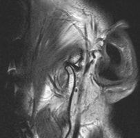 Срез МРТ лвого ВНЧС в положении открывания рта 54 мм