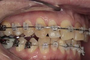 Боковая фотография прикуса (справа). Отмечается подъем прикуса за счет ортодонтических накладок