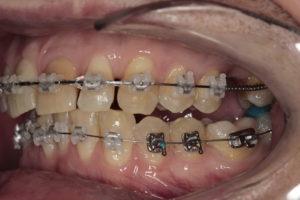 Боковая фотография прикуса (слева). Отмечается подъем прикуса за счет ортодонтических накладок