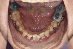 Фотография зубов нижней челюсти