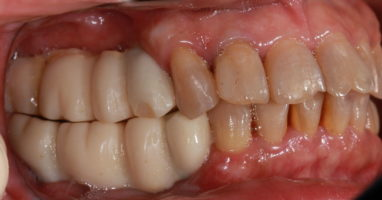 Состояние полости рта на момент протезирования коронок на имплантатах
