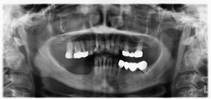 Ортопантомограмма до