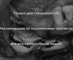 Межкортикальная остеотомия