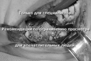 Аугментация