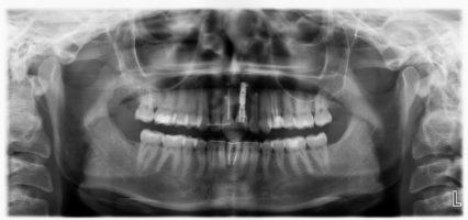 Ортопантомограмма После