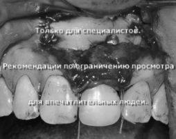 Получен необходимый результат для установки имплантата в правильную ортопедическую позицию, одномоментно произведена пластика мягких тканей для создания биологической ширины для будущей коронки на имплантате (уровень прикрепленной, неподвижной слизистой)