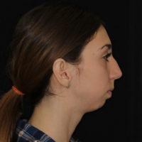 Западение нижней челюсти назад, нарушение прикуса, затруднение пережевывания