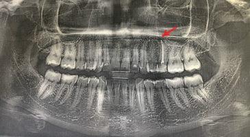 на ОПТГ в области верхушки 2.5 визуализируется очаг деструкции костной ткани