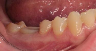 Вид десневого контура вокруг имплантата 46 и индивидуального формироваться десны спустя 3,5 месяца после одномоментной имплантации (вид сбоку)