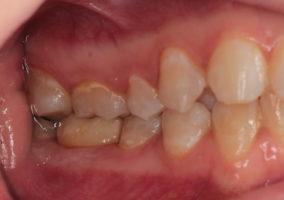 фиксированная постоянная керамическая коронка на идивидуальном абатменте с опорой на дентальный имплантат 46 в прикусе с зубами верхней челюсти (вид сбоку)