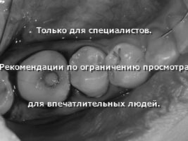 Фиксация индивидуального формирователя десны в имплантат 46 в полости рта (вид сверху)