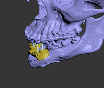 3D моделирование челюсти