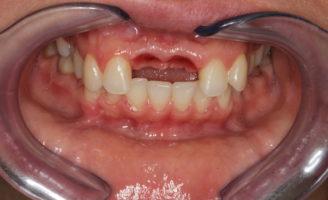 Произведено удаление зубов и одномоментная имплантация. Этап изготовления временных коронок сразу после хирургического вмешательства.