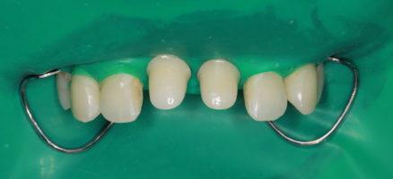 Момент фиксации коронок в полной изоляции от влаги полости рта для стабильного долгосрочного результата.