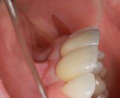 Видно, насколько гармонично керамические коронки вписываются в общую природу зубного ряда.